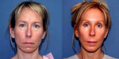Beverly Hills Extreme Makeover of Susan with rhinoplasty brow lift breast enlargement and fat injections.