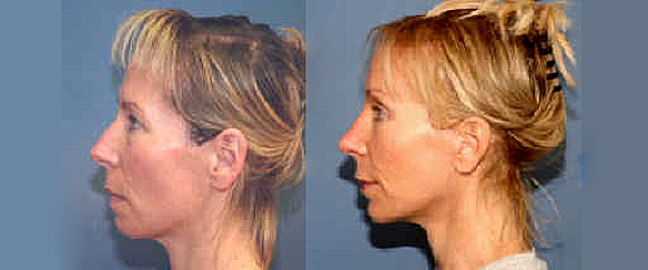 Extreme Makeover of Susan with rhinoplasty brow lift breast enlargement and fat injections.
