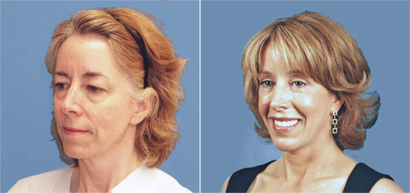 face lift and neck lift Extreme Makeover