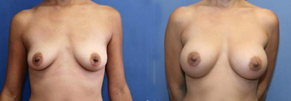 B cup size to a full C cup size with silicone breast implants.