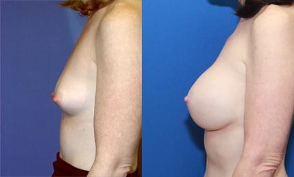 Breast augmentation saline implant full C cup 17 years after