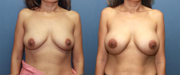 breast enlargement with 371 cc cohesive silicone gel breast implants