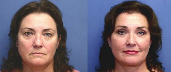 upper and lower eyelid lifts or blepharoplasty plastic surgeon Beverly Hills