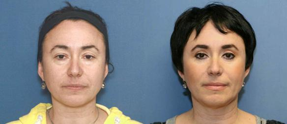 upper eyelid lift, lower eyelid lift, blepharoplasty, cosmetic surgery, Beverly Hills