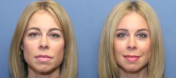 eyelid lift, blepharoplasty