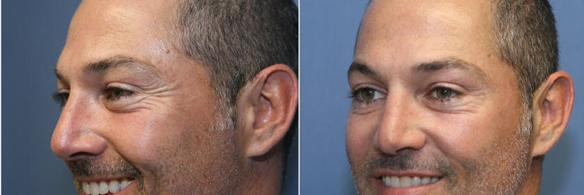 Botox or Xeomin botulinum wrinkle treatment