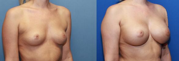 Silicone breast implants augmentation C/D cup size