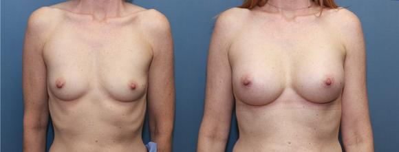 breast implants silicone after pregnancy A/B cup size to a C cup size