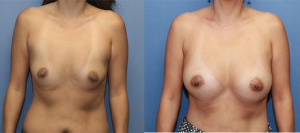 Post pregnancy breast enlargement with silicone gel implants upper C cup size.