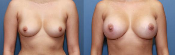34 full C cup, breast implants, round smooth silicone breast implants, Beverly Hills