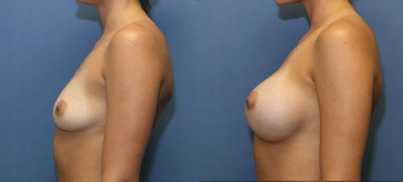 breast enlargement and enhancement to a D cup size with implants