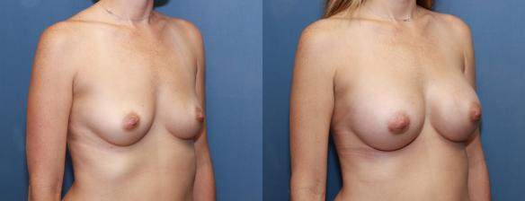 330 cc silicone breast implants, augmentation, mother