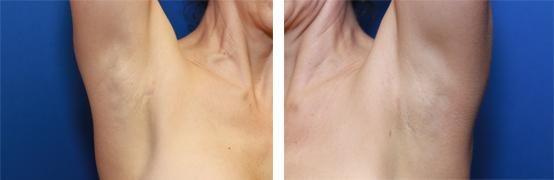 transaxillary breast augmentation incisions