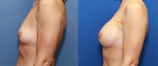 transaxillary breast augmentation to a small C cup