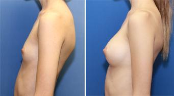 Breast implants A cup to a B cup size 250 cc cohesive silicone