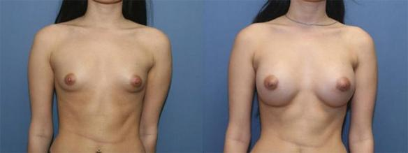 A cup size breast, C cup size breast, silicone breast implant.
