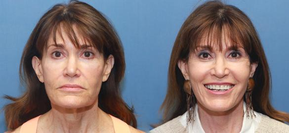 facelift, face lift, neck lift, necklift, fat grafts, face