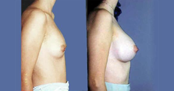 D cup breast enlargement or augmentation using silicone breast implants