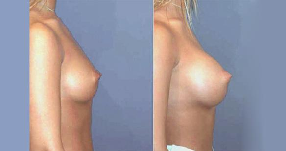 D cup size breast enlargement and augmentation with breast implants.