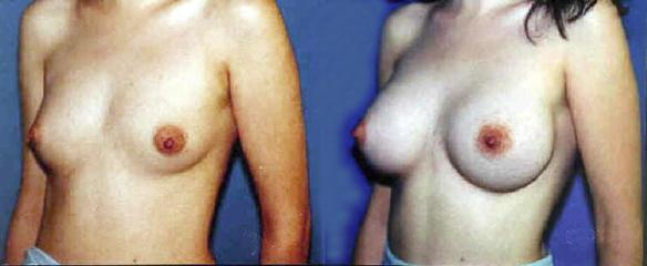 full C cup or D cup size breast enlargement.