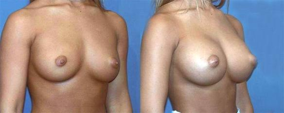 D cup size breast enlargement with silicone breast implants.