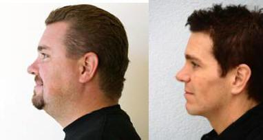 Buccal fat pad excision with neck liposuction, weight loss and prejowl chin implant