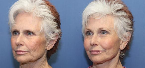 facelift, browlift and necklift plastic surgery with fat grafts