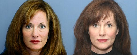 face lift, neck lift and brow lift with fat injections of the face.