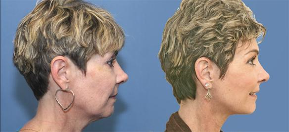 Facelift, necklift, fat grafts and laser face peel Newport Beach
