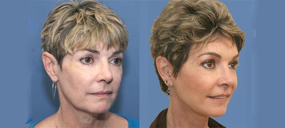 Facelift, necklift, laser peel, face peel Beverly Hills, CA