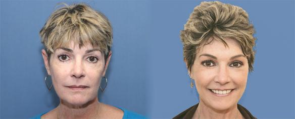 facelift, necklift and laser face peel Beverly Hills Los Angeles