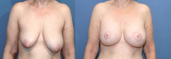 breast lift, full breast lift, mastopexy