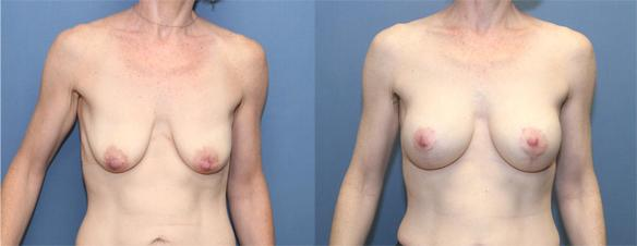 breast lift full with small breast implants