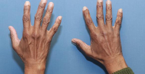 hand filler injection Radiesse Beverly Hills Ca
