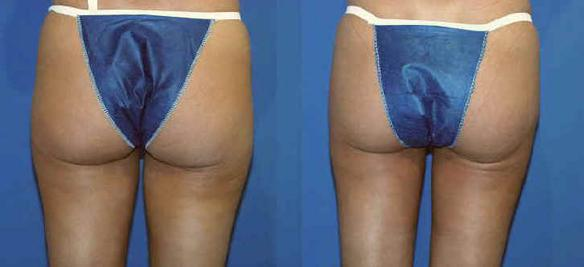 liposuction and body sculpting thighs and knees Los Angeles