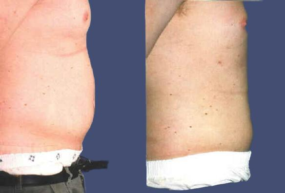 liposuction stomach male