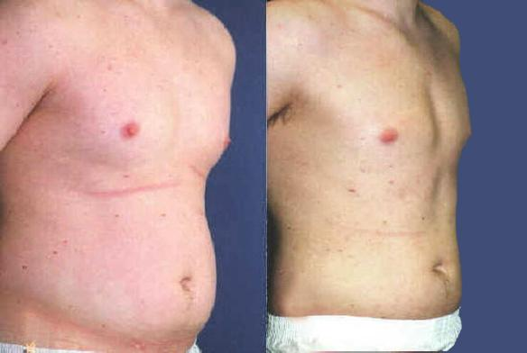 liposuction stomach and male chest liposuction