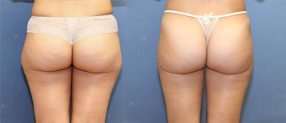 liposuction of hips and thighs in Beverly HIlls