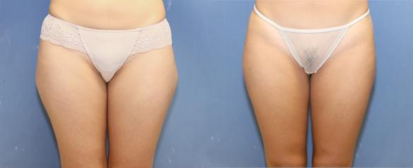 liposculting of hips and thighs in Bevelry Hills