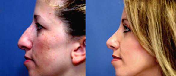 rhinoplasty, chin enlargement facial plastic surgery