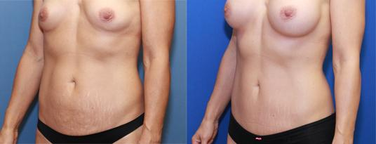 Mommy makeover with mini tummy tuck and breast enlargement