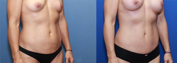 Mommy Makover with mini Tummy Tuck and Breast Augmentation