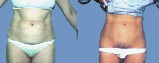 Liposuction of the abdomen