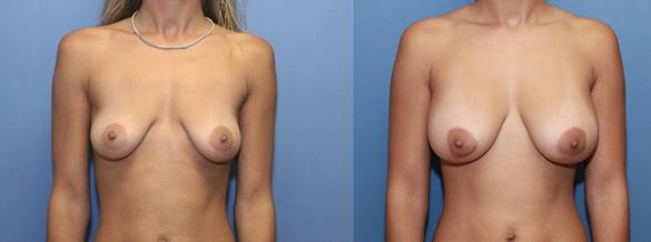 Breast implants 350 cc silicone