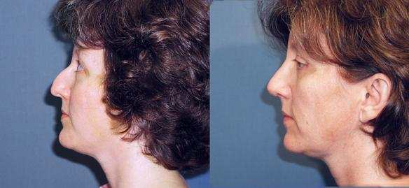 nosejob, rhinoplasty, facial plastic surgeon and brow lift.