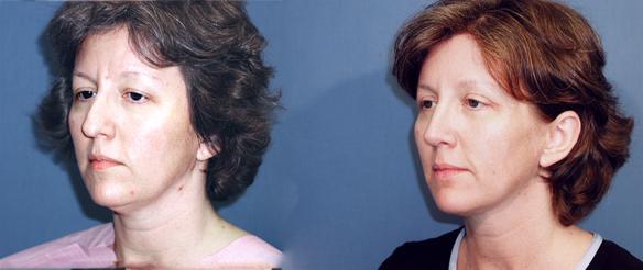 nosejob, rhinoplasty, facial plastic surgery, Newport Beach, CA