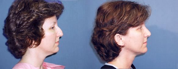 rhinoplasty, nose job, facial plastic surgery, Beverly Hills.