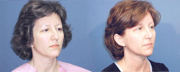 nosejob, rhinoplasty, facial plastic surgery, Beverly Hills