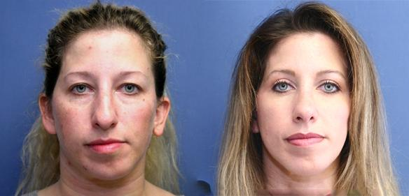 Rhinoplasty, cosmetic surgery, plastic surgery, Beverly Hills