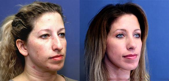 nosejob, rhinoplasty, facial plastic surgeon.